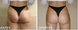 antes y después cavitación
