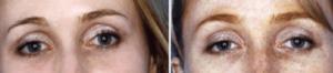 antes y despues blefaroplastia quimica
