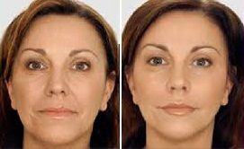 cambio lifting facial