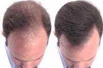 técnicas de implante de pelo