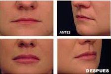 Labios con mayor volumen