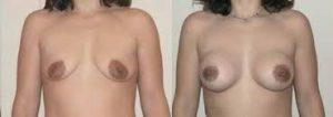 mayor volumen en los senos