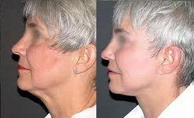 resultados lifting de cuello
