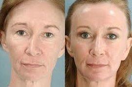 mejorar aspecto con colageno