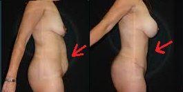 resultados tras una abdominoplastia