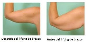 lifting de brazos antes y despues