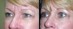 antes y despues de una operacion de bolsas