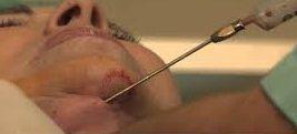 liposucción de papada