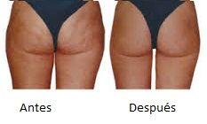 antes y despues de la cavitacion