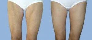 resultados de una cirugia de muslos