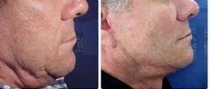 intervención estética en el cuello