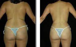 cirugía estética en la espalda