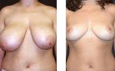 mamopexia reduccion pecho