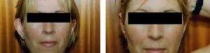 REsultados tras eliminar orejas de soplillo