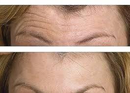 botox aplicado en arrugas