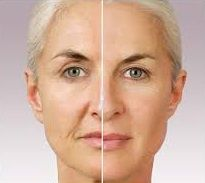 antes y despues colageno hialuronico
