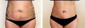 riesgos liposucción