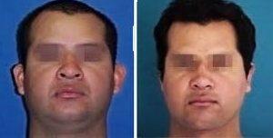 cirugía para eliminar grasa de la cara