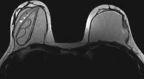 implantes rotos