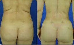 mejorar la estética de la espalda