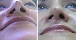 tratamiento nariz con radiofrecuencia