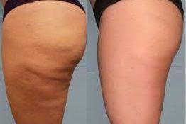 antes y despues de celulitis