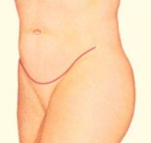 cicatrices postoperatorio