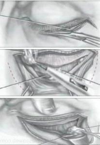intervención en el ojo
