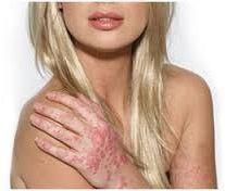 la psoriasis y los problemas de belleza