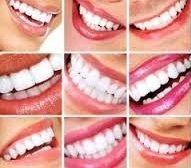trucos caseros para dientes blancos