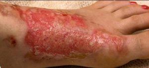 marcas en la piel