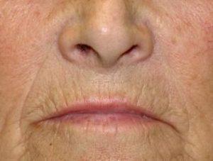 evitar arrugas faciales
