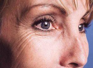 arrugas junto al ojo