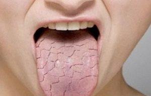 sequedad en la boca