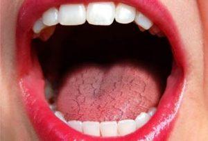 falta de hidratación en la boca